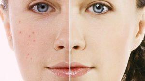 Tratamentul minune împotriva acneei,  candidozei si infecțiile respiratorii!