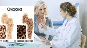 Tratament naturist pentru osteoporoza, cu miere, nuca si oua