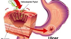 "Medicii japonezi au gasit tratamentul natural pentru ""HELICOBACTER PYLORI""!"