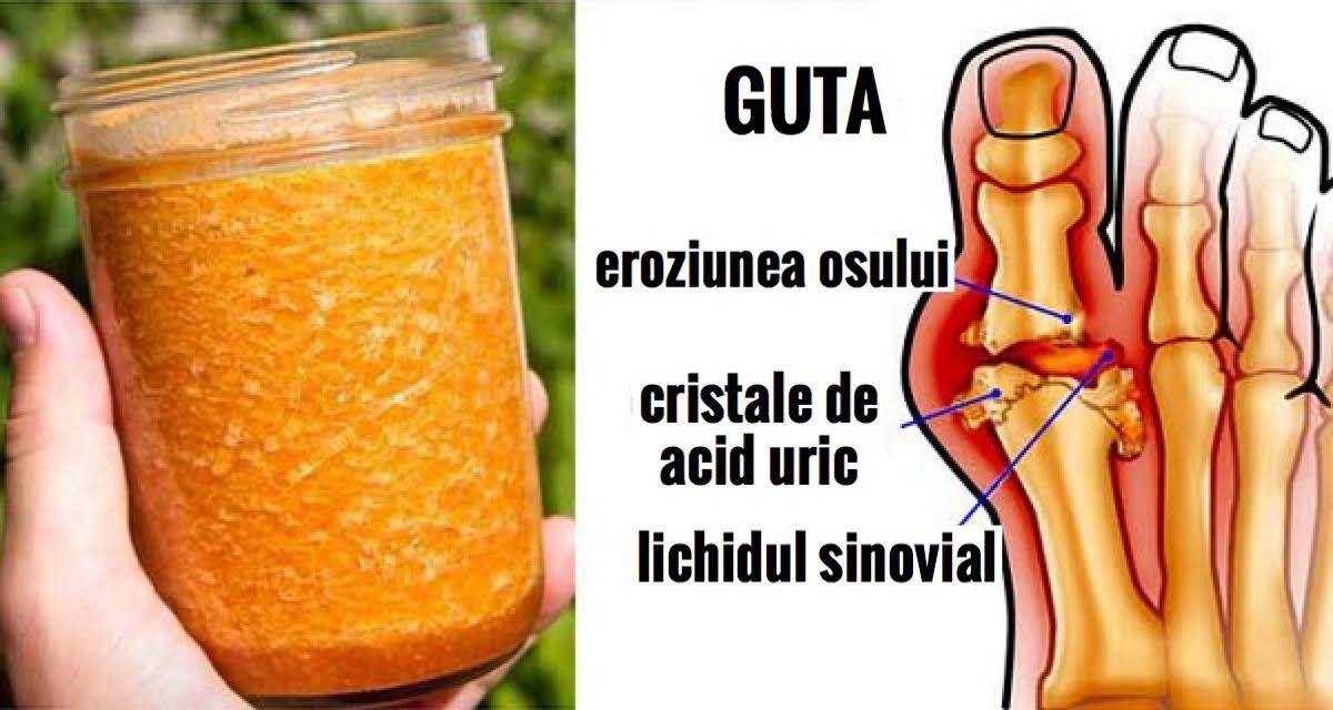 Spuneti adio gutei cu acest tratament natural!!!