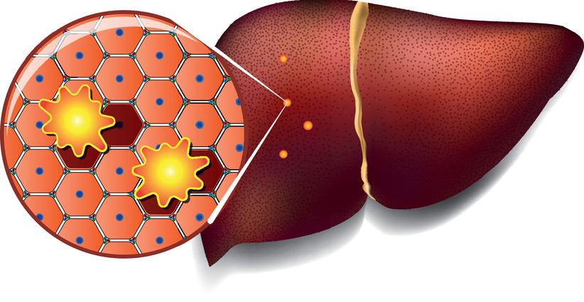 Acestea sunt simptomele unui ficat gras și iată aici cum se vindecă