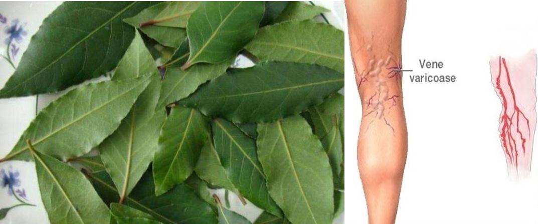 Frunzele de dafin vă pot scăpa de varice, dureri articulare, dureri de cap și pierderi de memorie – Rețetă ulei de dafin