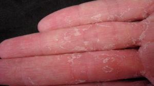 Semnele instalării cancerului în organism se observă prima dată pe mâini!
