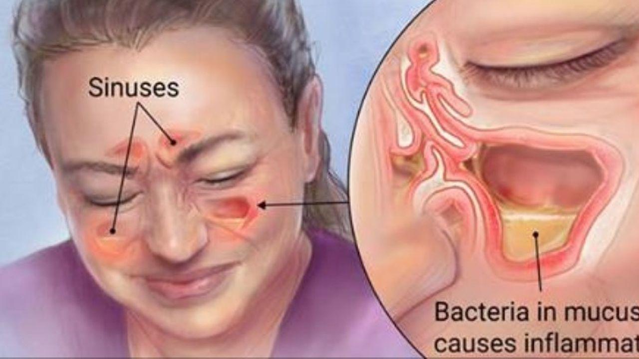 Tratament naturist pentru sinuzita acuta – Foarte simplu si eficient