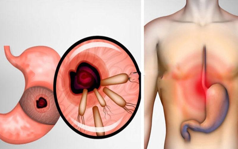 Cum scapi de bacteria care cauzează arsuri la stomac, ulcer și balonare în doar câteva ore