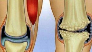 Remedii naturale anti-inflamatorii care fac minuni pentru durerile articulare și de genunchi