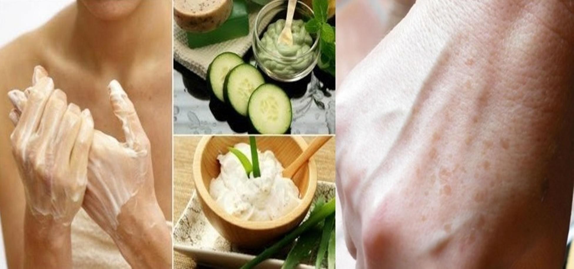 Natural și simplu-mâini bine îngrijite – 5 creme pentru reducerea petelor de pe mâini, îndepărtează ridurile, petele de vârstă și fisurile